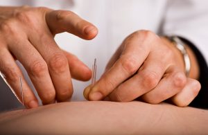 oviedo winter springs acupuncturist